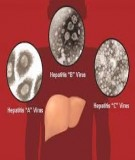 Bệnh viêm gan - Viêm gan siêu vi A