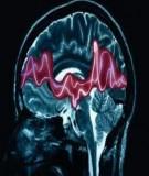 Bệnh học thực hành: Động kinh