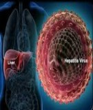 Viêm gan Biết để sống tốt hơn: Chương 2. Viêm gan siêu vi A- Nguyễn Minh Tiến