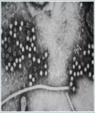 Viêm gan Biết để sống tốt hơn: Chương 6. Viêm gan siêu vi E- Nguyễn Minh Tiến