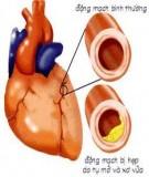 Bệnh Xơ vữa động mạch ở người cao tuổi