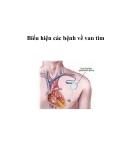 Biểu hiện các bệnh về van tim