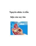 Nguyên nhân và dấu hiệu của suy tim