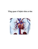 Tổng quan về bệnh viêm cơ tim