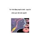Xơ vữa động mạch cảnh - nguyên nhân gây liệt nửa người