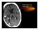 bài giảng : CT Scan trong tai biến mạch máu não part 3
