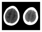 bài giảng : CT Scan trong tai biến mạch máu não part 7