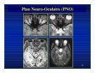 Bài giảng : Giải phẫu thần kinh đối chiếu chẩn đoán Hình ảnh part 4