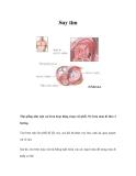 Bệnh lâm sàng Suy tim