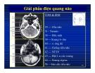 Giải phẫu thần kinh đối chiếu chẩn đoán Hình ảnh part 8