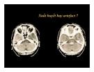 CT Scan trong tai biến mạch máu não  part 2