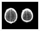 CT Scan trong tai biến mạch máu não  part 5