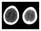 CT Scan trong tai biến mạch máu não  part 7