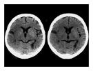 CT Scan trong tai biến mạch máu não  part 9