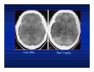 Bệnh viêm nhiễm ở não part 5