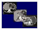 Viêm tụy cấp và mãn tính part 6