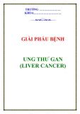 UNG THƯ GAN (LIVER CANCER)