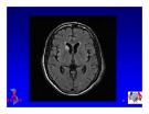 Bài giảng điều trị HIV : Các biểu hiện bệnh lý thần kinh ở người nhiễm HIV part 5