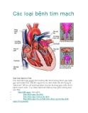 Các loại bệnh tim mạch