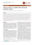 "báo cáo khoa học: ""Yolk sac tumor in a patient with transverse testicular ectopia"""