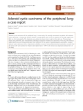 """Báo cáo khoa học: """"Adenoid cystic carcinoma of the peripheral lung: a case report"""""""