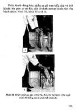 Thực hành lâm sàng thần kinh học tập 1 part 8