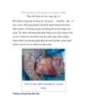 Ghép da bằng vạt siêu mỏng có nối mạch vi phẫu