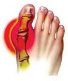 Bệnh Học Thực Hành: Bệnh gout
