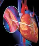 Bệnh Học Thực Hành: Nhồi máu cơ tim