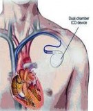 Bệnh Học Thực Hành: Suy tim (Insufisance cardiaque - Congestive heart failure – Tâm Lực Suy Kiệt)