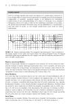150 Practice ECGs: Interpretation and Review - Part 2
