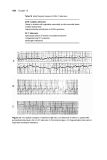 Basic Electrocardiography Normal and abnormal ECG patterns - Part 8