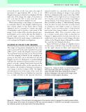 Peripheral Vascular Ultrasound - part 3