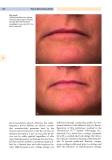 Cosmetic dermatology - part 8