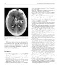 EMERGENCY NEURORADIOLOGY - PART 8