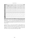 Handbook of EEG interpretation - part 7