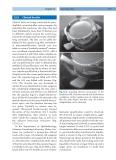 Refractive Lens Surgery - part 6