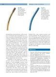 Refractive Lens Surgery (part 9)