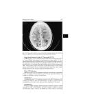 Tropical Neurology - part 9