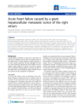 """Báo cáo y học: """"Acute heart failure caused by a giant hepatocellular metastatic tumor of the right atrium"""""""