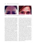 Clinical Procedures in Laser Skin Rejuvenation - part 9