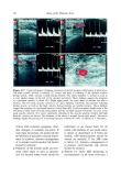 Atlas of the Diabetic Foot - part 2