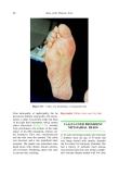 Atlas of the Diabetic Foot - part 4