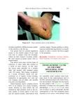 Atlas of the Diabetic Foot - part 6