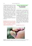 Atlas of the Diabetic Foot - part 8
