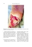 Atlas of the Diabetic Foot - part 9