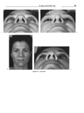 Rhinoplasty  Dissection Manual - part 6