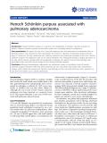 "Báo cáo y học: ""Henoch Schönlein purpura associated with pulmonary adenocarcinoma"""
