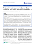 """Báo cáo y học: """"Metastatic breast carcinoma in the mandible presenting as a periodontal abscess: a case report"""""""