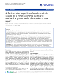 """Báo cáo khoa học: """"Adhesions due to peritoneal carcinomatosis caused by a renal carcinoma leading to mechanical gastric outlet obstruction: a case report"""""""